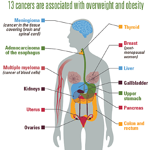 Infographic showing the 13 cancers are associated with overweight and obesity